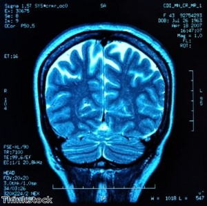 Mystery solved as missing brains are traced at last